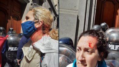 Photo of La Policía de la ciudad de Buenos Aires Reprimió a las enfermeras en el día de la sanidad